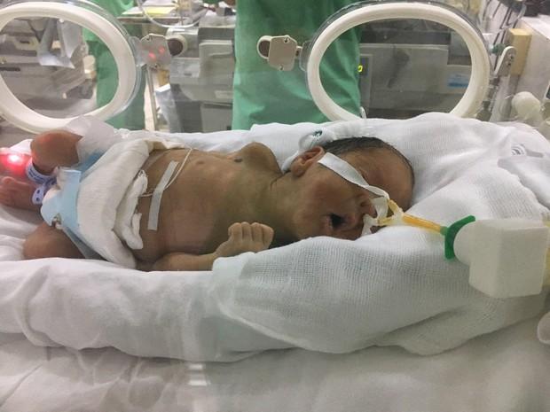 Người mẹ trẻ sinh con khi bị ung thư giai đoạn cuối đã tỉnh lại, tự viết chữ: Chồng em đâu chị? - Ảnh 4.
