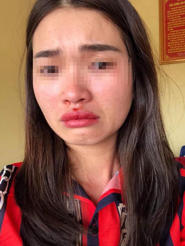 Thông tin mới vụ tài xế xe buýt đánh nữ hành khách chảy máu mũi vì chụp ảnh xe đánh võng - Ảnh 3.