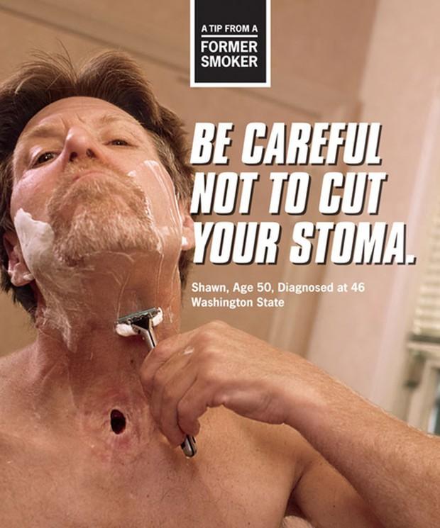 Chùm ảnh biết nói cho thấy tác hại kinh khủng của thuốc lá khiến cả những người không hút thuốc cũng phải suy ngẫm - Ảnh 14.