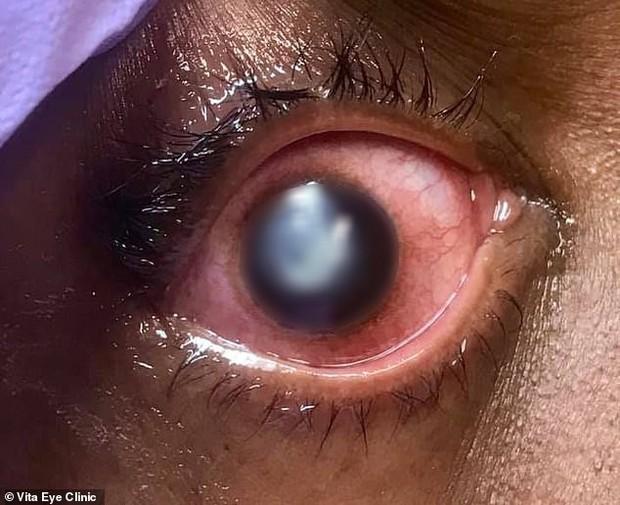 Đeo thứ này ngủ qua đêm khiến đôi mắt dần bị ăn mòn giác mạc, thậm chí còn gây mù lòa - Ảnh 5.