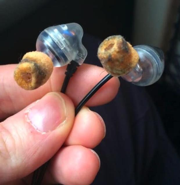 10 hình ảnh ác mộng khi người ở bẩn dùng tai nghe, level dơ dáy vượt ngưỡng vô cực - Ảnh 6.