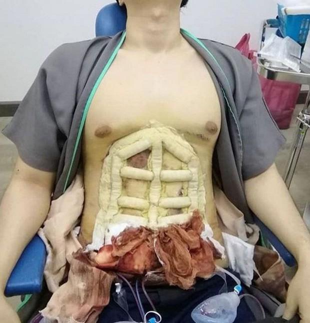 Tập gym mãi rồi nhưng chưa có cơ bụng 6 múi, cách đơn giản nhất là nhờ đến phẫu thuật thẩm mỹ - Ảnh 3.
