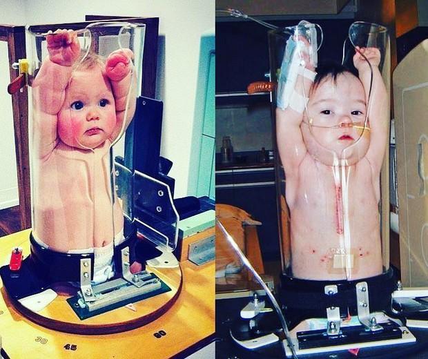 Đây là cách các em bé chụp X-quang: Cảm xúc đơn giản là cười không nhặt được mồm - Ảnh 3.