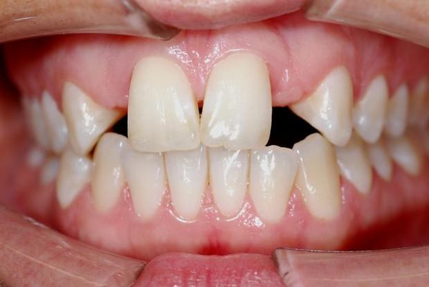 Bạn có thuộc một trong những trường hợp bắt buộc phải niềng răng sau đây hay không? - Ảnh 1.