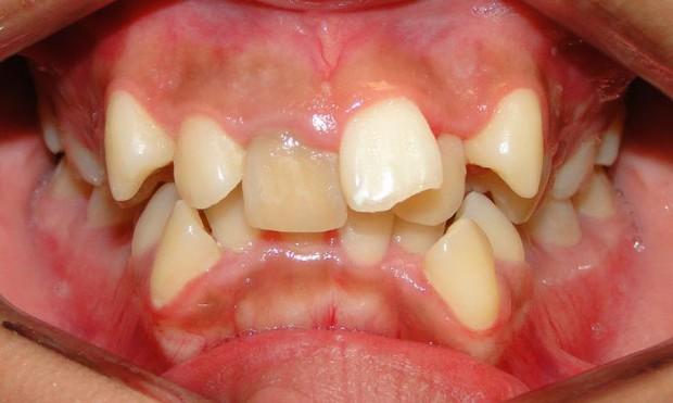 Bạn có thuộc một trong những trường hợp bắt buộc phải niềng răng sau đây hay không? - Ảnh 3.
