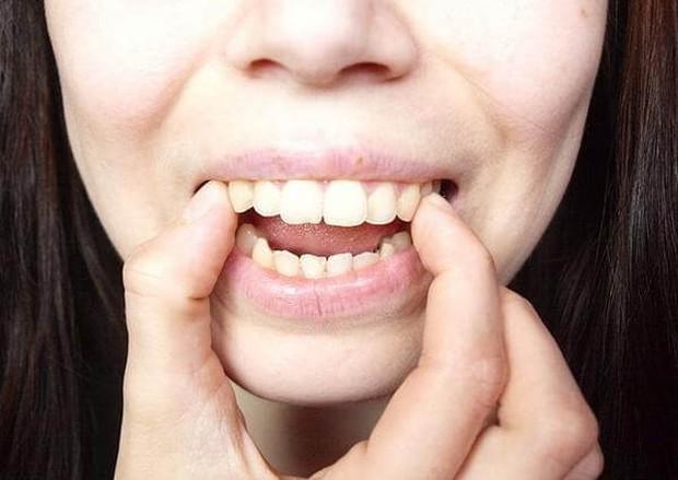 Bạn có thuộc một trong những trường hợp bắt buộc phải niềng răng sau đây hay không? - Ảnh 4.