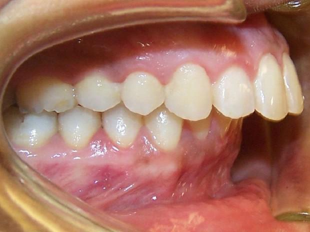 Bạn có thuộc một trong những trường hợp bắt buộc phải niềng răng sau đây hay không? - Ảnh 5.