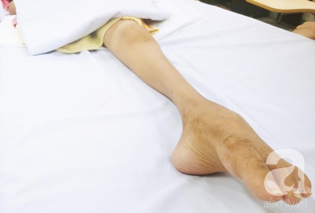 Người mẹ bật khóc nhìn con gái bị cắt chân, nằm liệt giường sau khi mổ não - Ảnh 11.