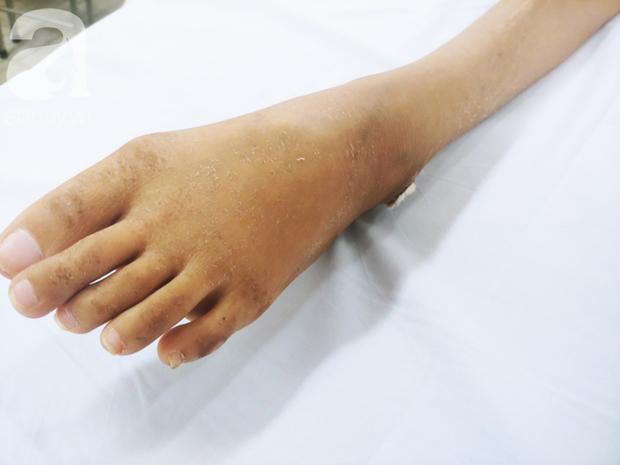 Người mẹ bật khóc nhìn con gái bị cắt chân, nằm liệt giường sau khi mổ não - Ảnh 7.