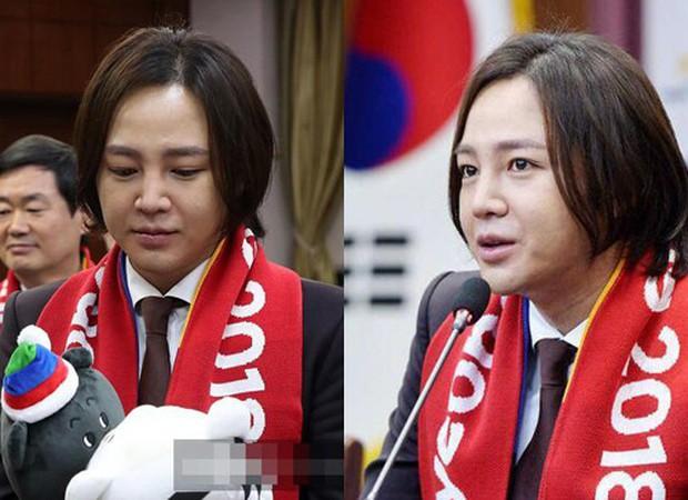 Sao thế giới nhận quả đắng trong nước mắt vì thẩm mỹ: Park Bom, Cardi B phù nề cũng không sốc bằng trường hợp cuối - Ảnh 7.