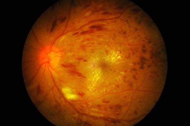 Tưởng mình mắc bệnh tâm thần khi liên tục nhìn thấy những thứ bất thường, cô gái trẻ đi khám mới biết là do một căn bệnh ở mắt gây ra - Ảnh 4.