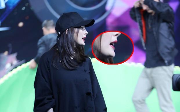 Sao thế giới nhận quả đắng trong nước mắt vì thẩm mỹ: Park Bom, Cardi B phù nề cũng không sốc bằng trường hợp cuối - Ảnh 15.