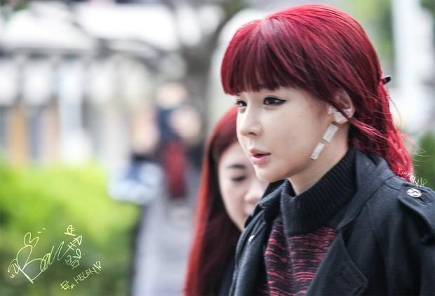 Sao thế giới nhận quả đắng trong nước mắt vì thẩm mỹ: Park Bom, Cardi B phù nề cũng không sốc bằng trường hợp cuối - Ảnh 9.