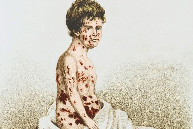 Cứ thoải mái chối bỏ, nhưng 6 căn bệnh này sẽ khiến nhân loại khổ sở hơn rất nhiều nếu vaccine không xuất hiện - Ảnh 2.