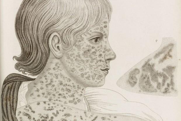 Cứ thoải mái chối bỏ, nhưng 6 căn bệnh này sẽ khiến nhân loại khổ sở hơn rất nhiều nếu vaccine không xuất hiện - Ảnh 6.