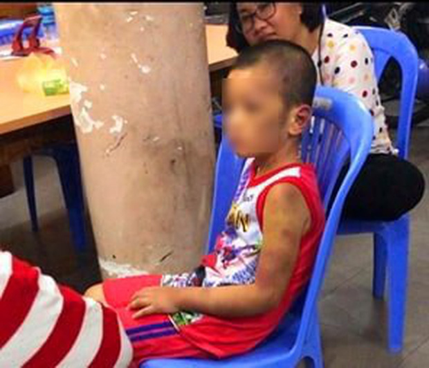 Vụ người phụ nữ và bạn tình đồng tính bạo hành con: Bé trai bị tra tấn hằng ngày bằng tay chân, cán chổi - Ảnh 2.