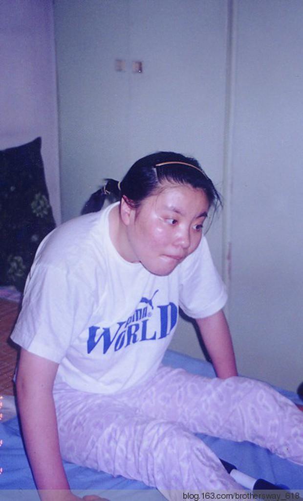 Vụ đầu độc bí ẩn chấn động Trung Quốc: Cô sinh viên ưu tú bỗng chốc trở thành đứa trẻ bại liệt, sau 25 năm vẫn không bắt được kẻ hạ độc - Ảnh 3.
