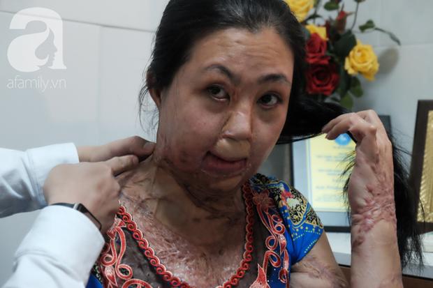 Vừa chia tay chồng, người phụ nữ bị kẻ lạ tạt axit, đau đớn khi con trai 8 tuổi sợ hãi, không nhận ra mẹ - Ảnh 2.