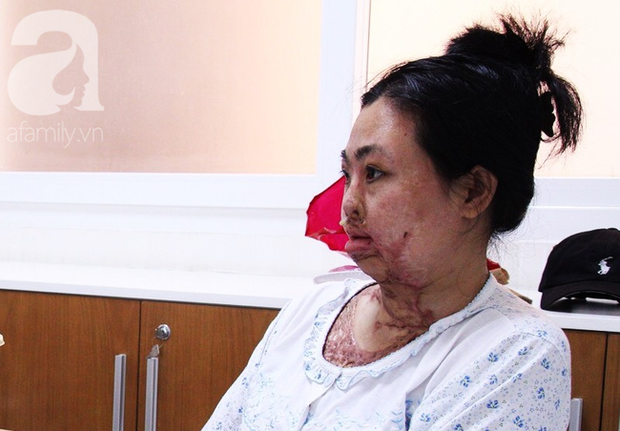 Vừa chia tay chồng, người phụ nữ bị kẻ lạ tạt axit, đau đớn khi con trai 8 tuổi sợ hãi, không nhận ra mẹ - Ảnh 12.
