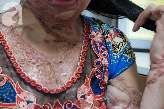 Vừa chia tay chồng, người phụ nữ bị kẻ lạ tạt axit, đau đớn khi con trai 8 tuổi sợ hãi, không nhận ra mẹ - Ảnh 4.