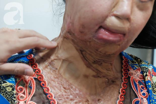 Vừa chia tay chồng, người phụ nữ bị kẻ lạ tạt axit, đau đớn khi con trai 8 tuổi sợ hãi, không nhận ra mẹ - Ảnh 5.