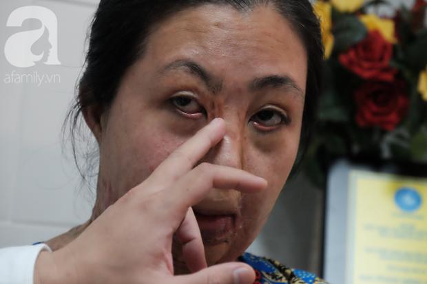Vừa chia tay chồng, người phụ nữ bị kẻ lạ tạt axit, đau đớn khi con trai 8 tuổi sợ hãi, không nhận ra mẹ - Ảnh 8.