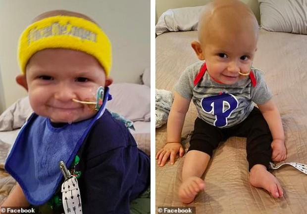 Thấy đầu con nghiêng nhẹ sang phải, bố mẹ không ngờ con trai 3 tháng tuổi bị bệnh ung thư nghiêm trọng đến thế - Ảnh 2.