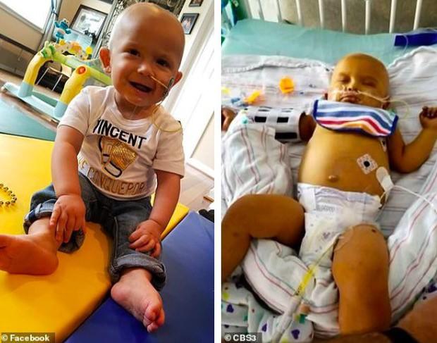 Thấy đầu con nghiêng nhẹ sang phải, bố mẹ không ngờ con trai 3 tháng tuổi bị bệnh ung thư nghiêm trọng đến thế - Ảnh 4.