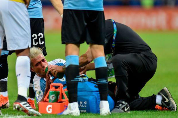 Trọng tài bẻ còi sau khi xem lại pha đánh yêu khiến đối phương đầm đìa máu tại Copa America 2019 - Ảnh 3.