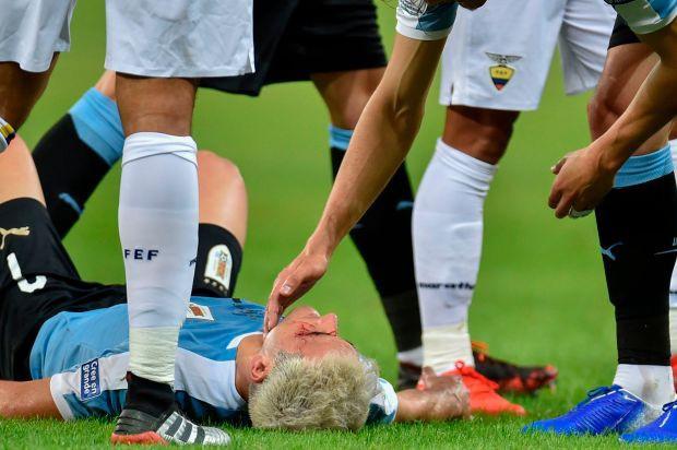 Trọng tài bẻ còi sau khi xem lại pha đánh yêu khiến đối phương đầm đìa máu tại Copa America 2019 - Ảnh 2.