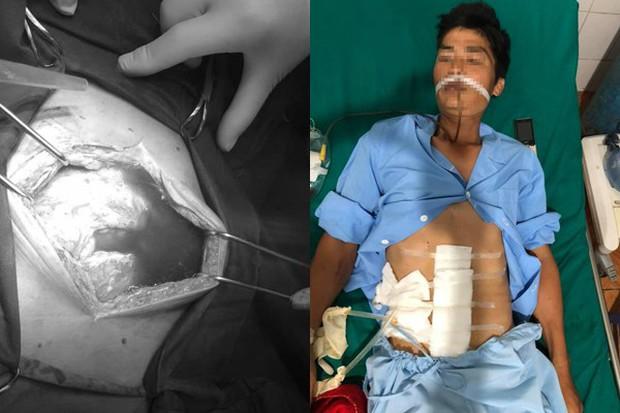 Thủng dạ dày 4 ngày không biết, người đàn ông suýt thối hết nội tạng - Ảnh 2.