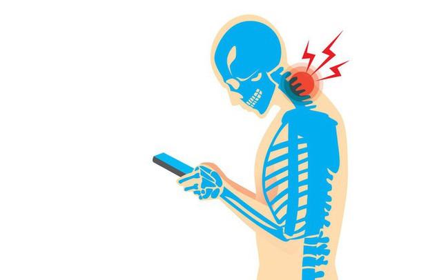 Hậu quả đáng sợ: Gục đầu dùng điện thoại nhiều có thể khiến hộp sọ của bạn mọc đuôi - Ảnh 2.