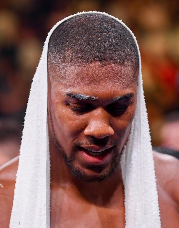 Nhà vô địch sở hữu body cực khủng bị gã béo đấm chảy máu mũi, nhận thất bại gây sốc với toàn thế giới - Ảnh 9.
