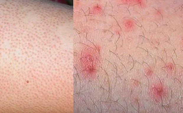 Mùa hè phải dọn vi-ô-lông thường xuyên thì bạn hãy chú ý những tác hại dễ gặp phải này - Ảnh 1.