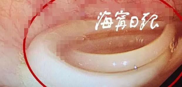 Suốt 10 năm bị tra tấn bởi những cơn đau bụng, người phụ nữ không ngờ trong dạ dày của mình chứa loài sinh vật này - Ảnh 2.