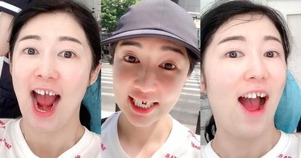 Xem Way (Crayon Pop) hé lộ bí mật để có được hàm răng trắng sáng như các idol xứ Hàn - Ảnh 8.