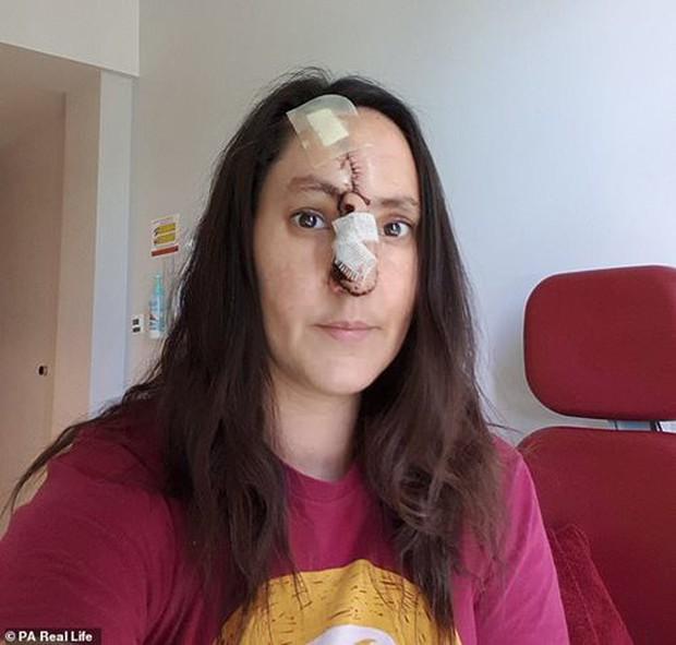 Nghiện làm đẹp da, người phụ nữ bị cắt mất một đoạn mũi - Ảnh 3.