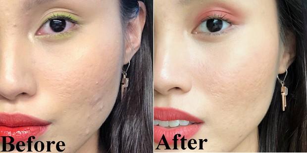 Mặt mụn lấm tấm nhưng nhờ tối giản hóa chu trình skincare mà làn da của cô nàng này đã thay đổi hẳn sau 2 tuần - Ảnh 1.