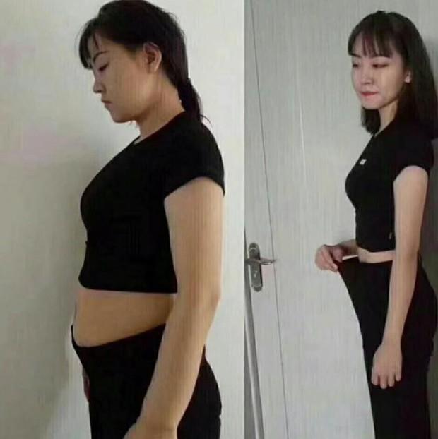 Cô gái 22 tuổi giảm được gần 10kg chỉ trong 1 tuần nhưng phải nhập viện gấp vì điều này - Ảnh 1.
