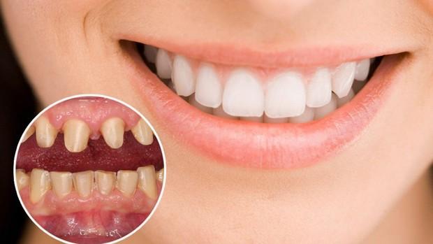 Xem Way (Crayon Pop) hé lộ bí mật để có được hàm răng trắng sáng như các idol xứ Hàn - Ảnh 9.