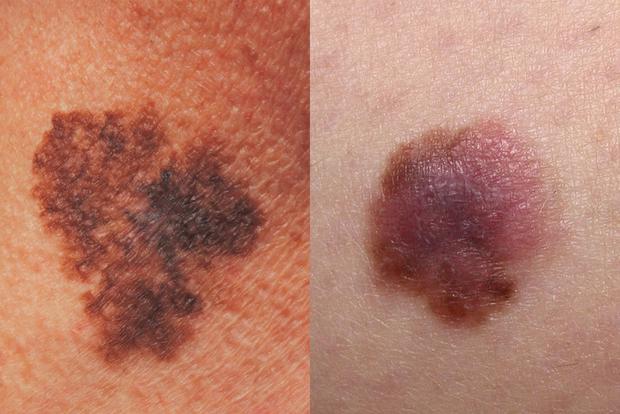 Bác sĩ da liễu Mỹ chỉ ra cách phân biệt 5 loại ung thư da phổ biến để kịp thời phòng tránh từ sớm - Ảnh 3.