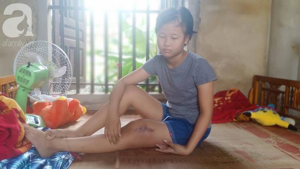 Tâm sự xót xa của bé gái 13 tuổi bị ung thư xương: Em con bị bướu cổ, con cưa chân rồi sao chăm sóc được em - Ảnh 2.