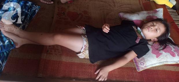 Tâm sự xót xa của bé gái 13 tuổi bị ung thư xương: Em con bị bướu cổ, con cưa chân rồi sao chăm sóc được em - Ảnh 3.