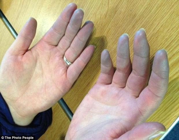 Vì chứng bệnh lạ, cô gái này phải chịu đau đớn cắt đi từng phần ngón tay suốt 6 năm trời - Ảnh 2.