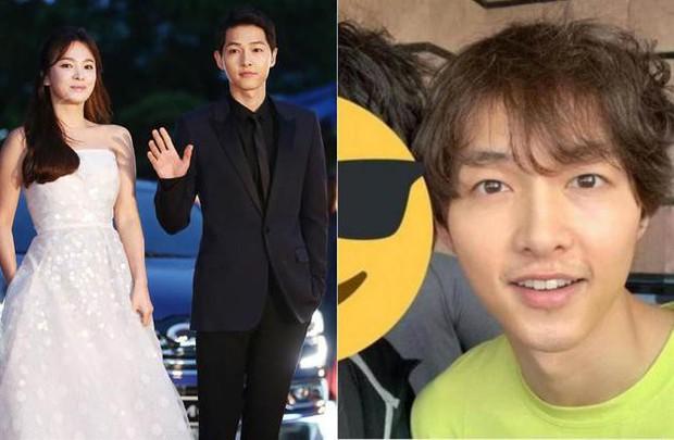Song Joong Ki rụng tóc đến mức xơ xác vì chịu áp lực quá lớn từ cuộc ly hôn với Song Hye Kyo? - Ảnh 2.
