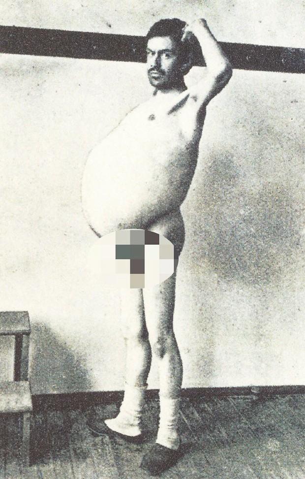 Người đàn ông chết khi đang đi vệ sinh, ruột được giữ ở bảo tàng mãi mãi - Ảnh 1.