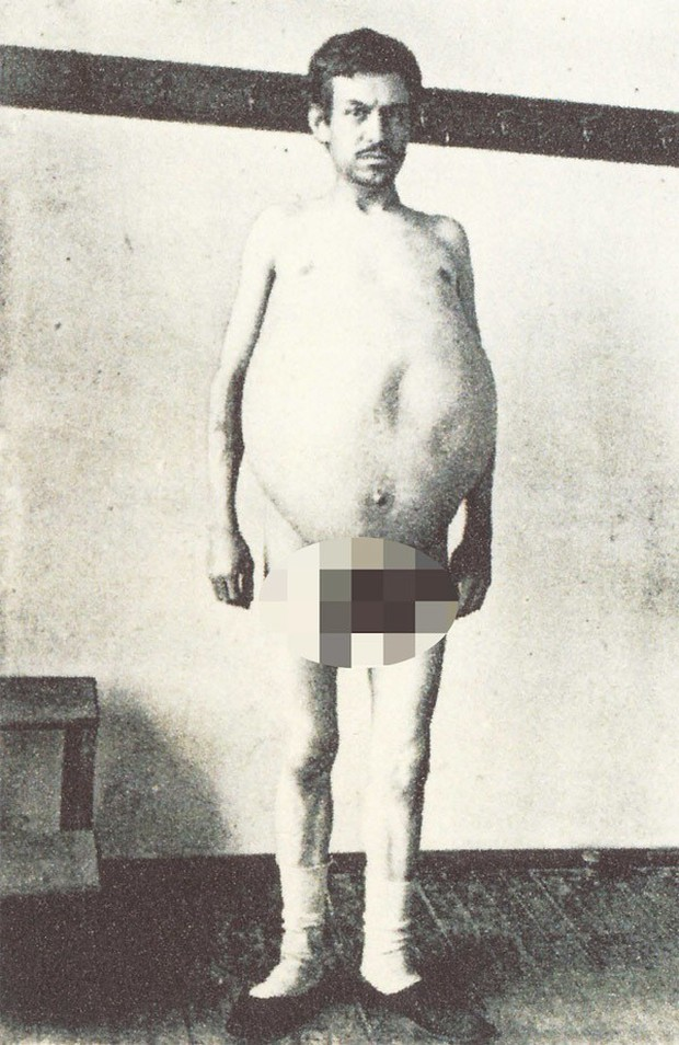 Người đàn ông chết khi đang đi vệ sinh, ruột được giữ ở bảo tàng mãi mãi - Ảnh 2.