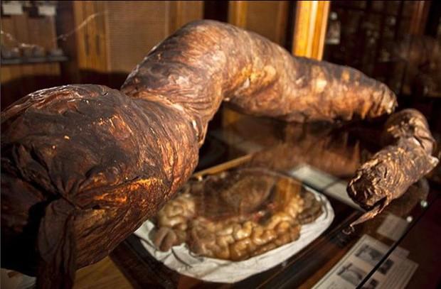 Người đàn ông chết khi đang đi vệ sinh, ruột được giữ ở bảo tàng mãi mãi - Ảnh 3.