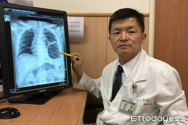 Người đàn ông 45 tuổi mắc bệnh ung thư trực tràng, táo bón suốt nhiều ngày chỉ vì thói quen này khi đi đại tiện - Ảnh 4.