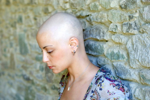Bị ung thư vú phải hóa trị rụng hết tóc, ốm yếu không đi làm được, người phụ nữ rụng rời khi nghe tin... bác sĩ nhầm - Ảnh 2.